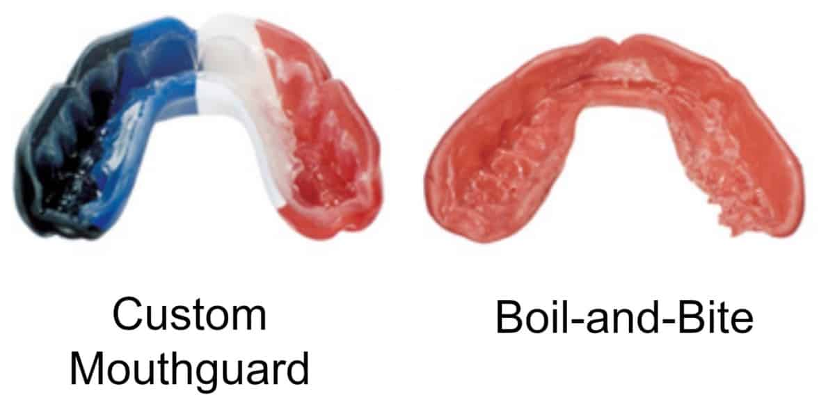 custom mouthguard vs boil and bite